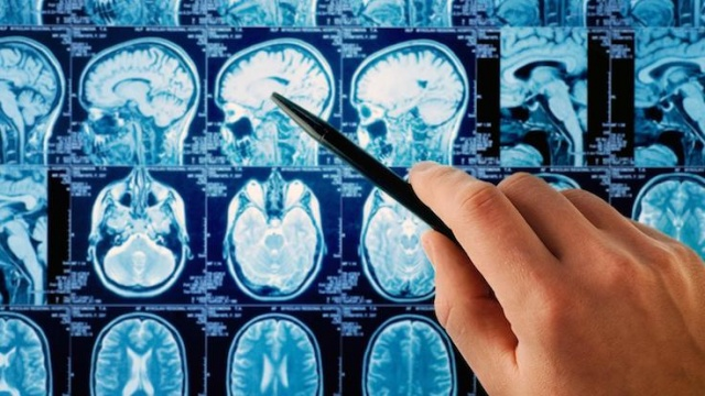 Beyni tüketen 10 şey