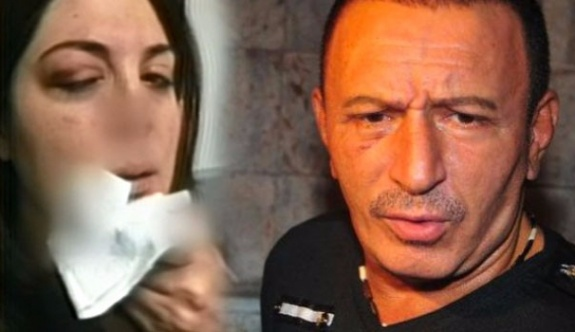 Mustafa Topaloğlu, eşi Derya Topaloğlu'nu hastanelik etti