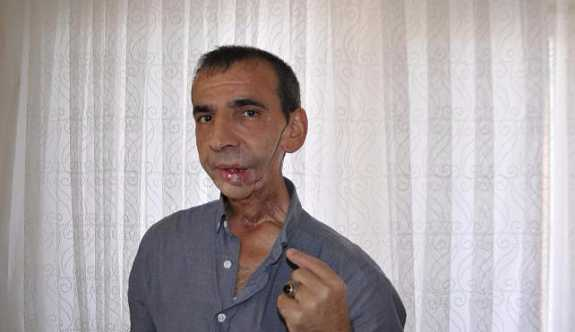 Diş ağrısıyla hastaneye başvuran adamın çenesi alındı