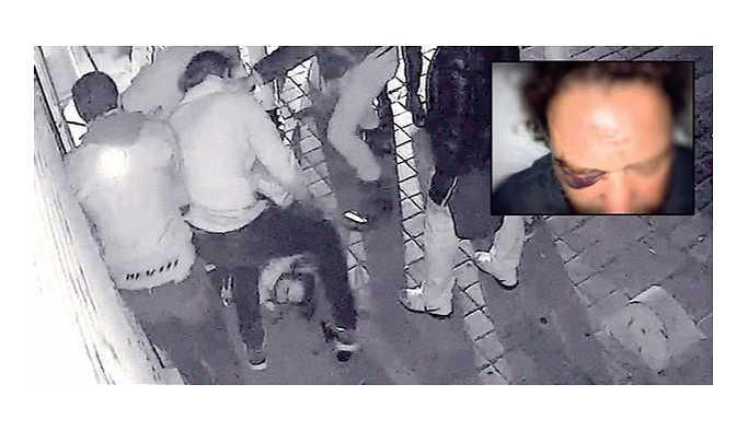 İstanbul'da dehşet: 10 motosikletçi bir kişinin önünü kesip 11 yerinden bıçakladı!
