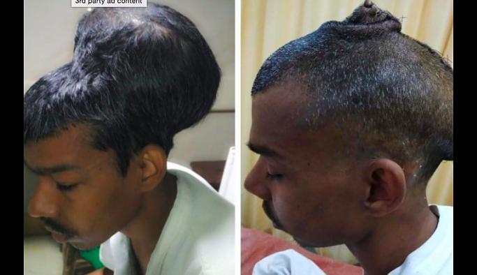 Kafa büyüklüğündeki  tümör, başarılı bir operasyonla çıkarıldı
