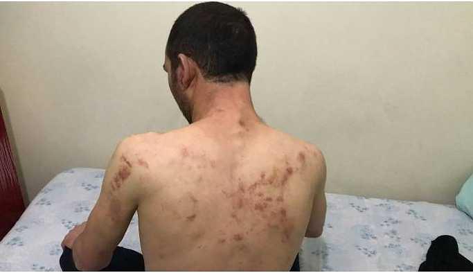 'Burası Kürdistan' dediği için emniyette işkence gördü