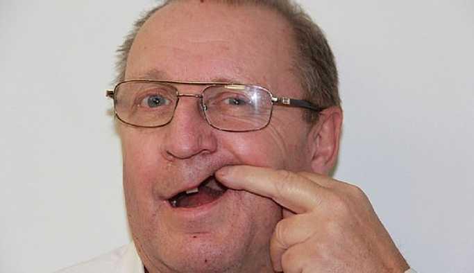 Dişçi randevusu için 18 ay bekleyen yaşlı adam, en sonunda dişini kendisi çekti