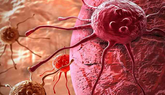 Kanser oluşumunda rol oynayan en önemli faktörler