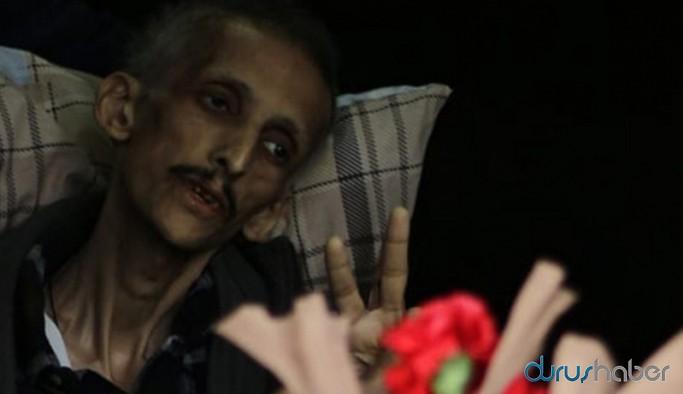 Ölüm orucunun 307. günü: Yaşamayı seviyorum, sadece türkü söylemek istiyorum