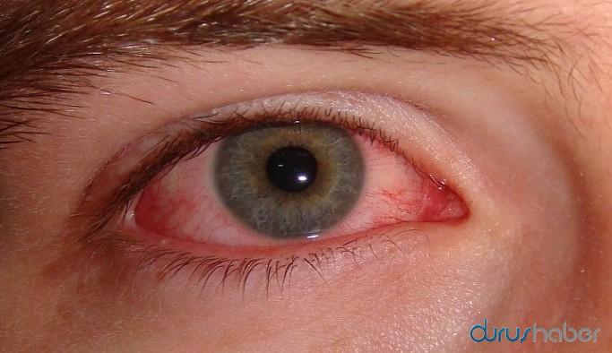 Koronavirüsünün az bilinen semptomları