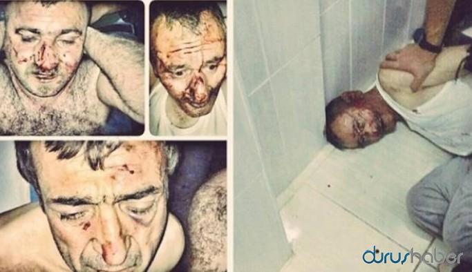 Bir işkence dosyası daha cezasızlıkla sonuçlandı: Polise ödül gibi ceza