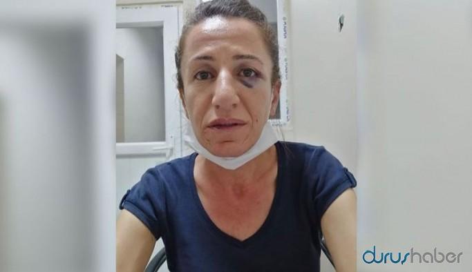 Köpekle işkence edilerek gözaltına alınan HDP yöneticisi Çetin adliyeye sevk edildi