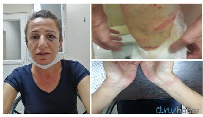 Köpekle işkence edilerek gözaltına alınan HDP yöneticisi tutuklandı