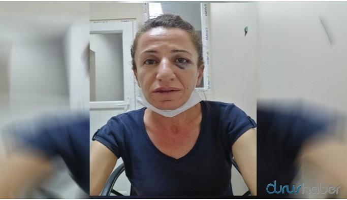 Köpekli işkence edilen Çetin'in gözaltı süresi 3'üncü kez uzatıldı