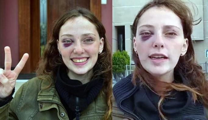 Boğaziçi öğrencisi Mısra Sapan: Polis özellikle yüzümüze vurdu