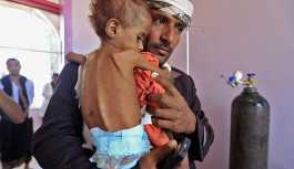 BM: Yemen son 100 yılın en büyük kıtlık felaketi ile karşı karşıya