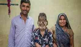 Hintli öğrenci ender görülen bir hastalık nedeniyle 'kurt adam'a dönüştü