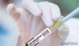 Çarpıcı rapor: Koronavirüs aşısı hiçbir zaman bulunamayabilir