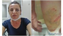 Hak örgütleri: Rojbin Çetin'e işkence yapanlara soruşturma açılsın