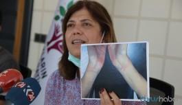 HDP, Diyarbakır'daki işkencenin belgelerini paylaştı: Derhal açıklama bekliyoruz