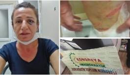 İşkenceye maruz bırakılan Rojbin Çetin'in gözaltı süresi uzatıldı