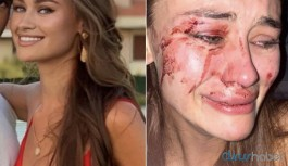 Dünyaca ünlü model İzmir'de güvenlik görevlilerin saldırısına uğradı